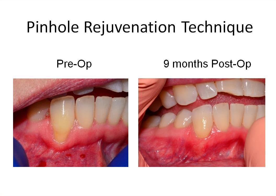 Dr Robert L Franklin Jr Gt Pinhole Technique Gt Pst